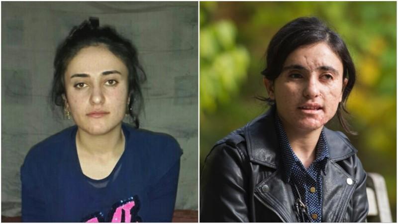 Несломленная: она два года была рабыней джихадистов, а убегая от них, наступила на мину