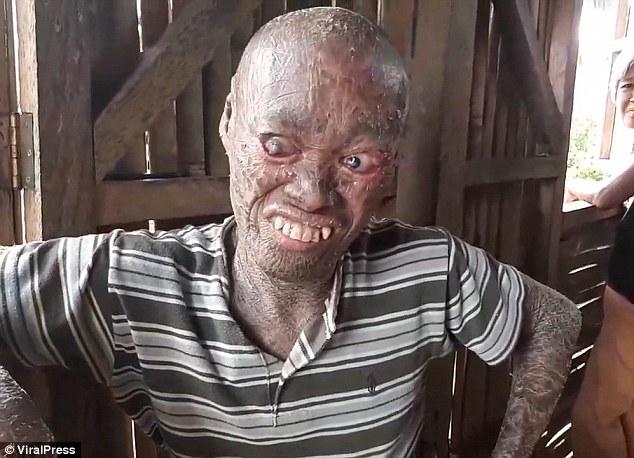 Из-за редкого заболевания парень выглядит как персонаж из фильма ужасов