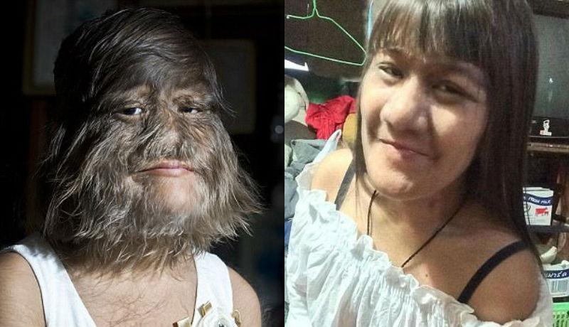 «Самая волосатая девушка в мире» вышла замуж и начала брить лицо