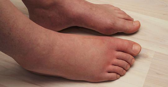 Ученые объясняют 6 вещей, которые вызывают отечность ног (и как это исправить)