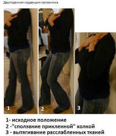 Как убрать ВДОВИЙ ГОРБ. Лучшиупражнения