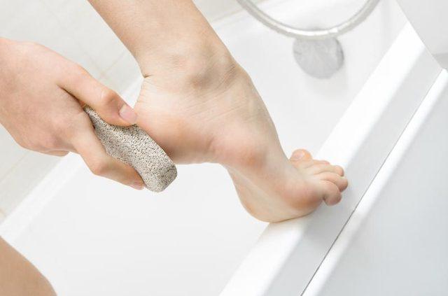 Как избавиться от сухих мозолей на ногах?