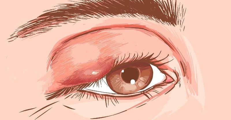 Как вылечить ячмень на глазу…