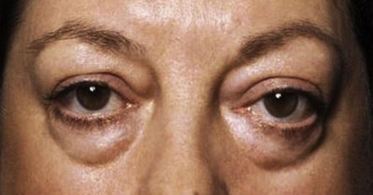 Если вы просыпаетесь с опухшими глазами: причины и способы избавления