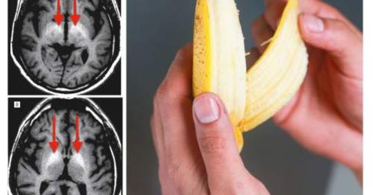 Что происходит с вашим телом, когда вы едите 3 банана в день