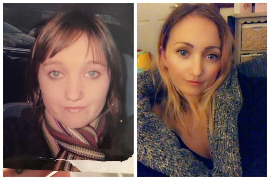 Эффект Бенджамина Баттона: 31-летняя британка «стареет наоборот» и выглядит моложе, чем в 15