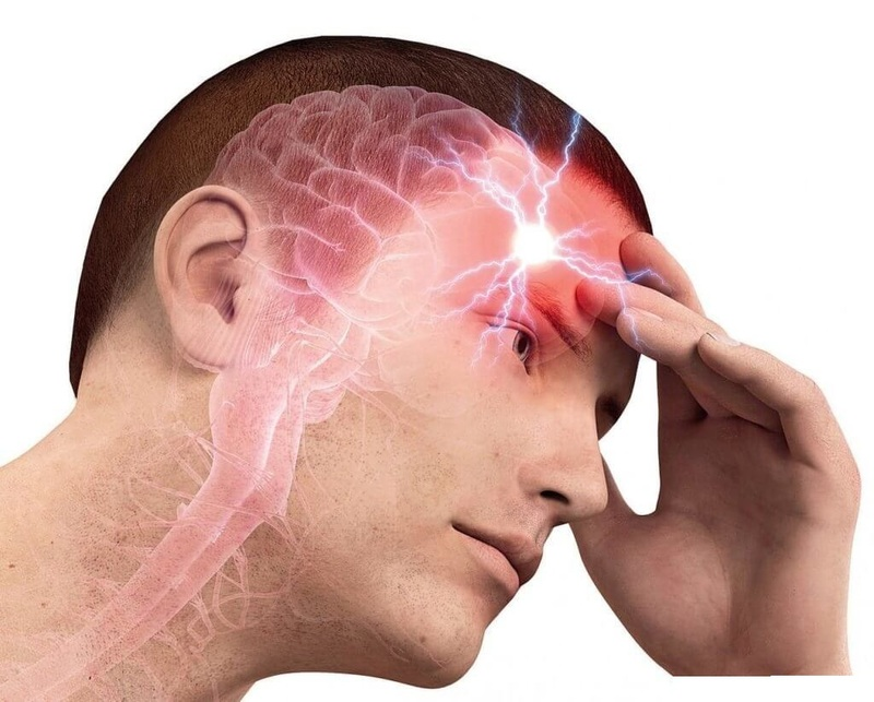 Картинки по запроÑу ÑоÑуды в голове боль