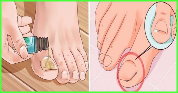 Картинки по запроÑу Дезинфицируйте грибок и бактерии пальцев ног Ñ Ð¿Ð¾Ð¼Ð¾Ñ‰ÑŒÑŽ ÑредÑтва Ð´Ð»Ñ Ð¿Ð¾Ð»Ð¾ÑÐºÐ°Ð½Ð¸Ñ Ñ€Ñ'а, Ñффект удивлÑет врачей