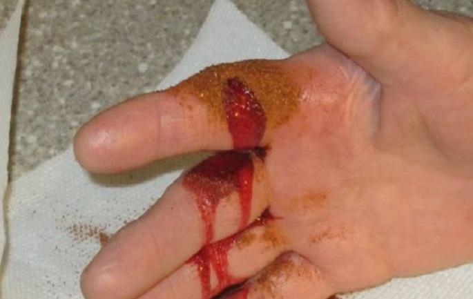 Как остановить кровотечение за 10 секунд? Поможет обычная приправа, которая есть и у вас на кухне…