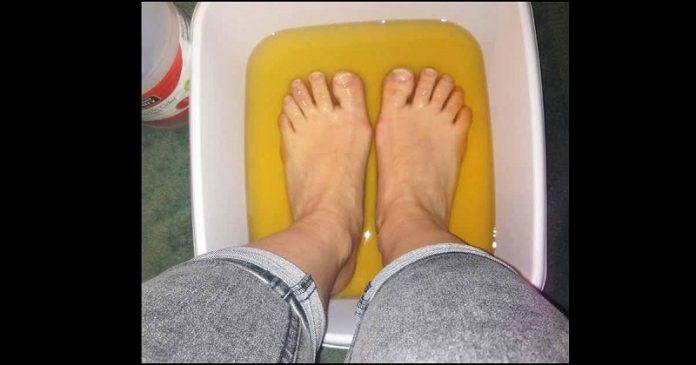Она приняла ванну для ног из яблочного уксуса, чтобы решить эту проблему. Я и понятия не имела