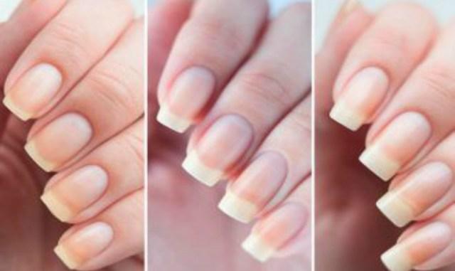 10 советов, чтобы ускорить рост ногтей