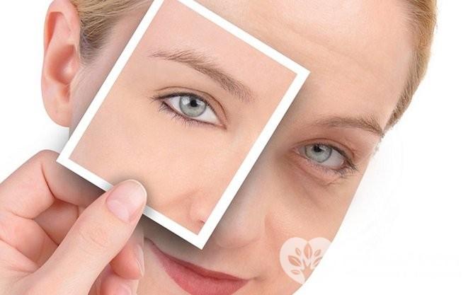 Появление у женщин темных кругов под глазами может быть связано с различными причинами