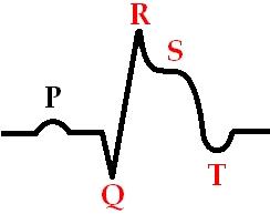 Инфаркт: симптомы и лечение