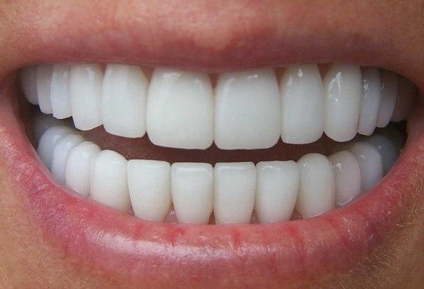 Несколько полезных советов при зубной боли!