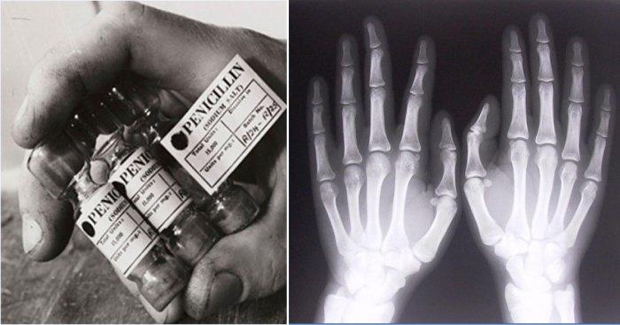 Рентген и пенициллин: 6 случ…