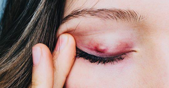 8 знаков того, что в вашем глазу ячмень