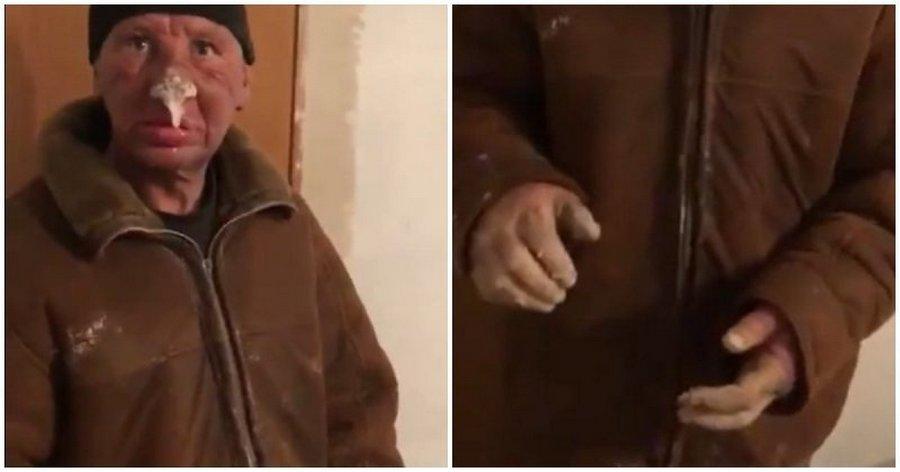 Житель Казахстана страшно обморозил лицо и руки