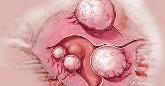 Народные средства от кисты и миомы