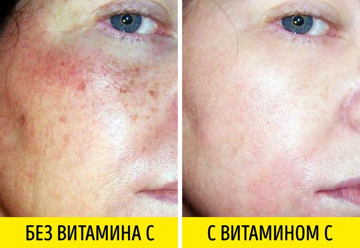 Мощное антивозрастное действие — 3 препарата, которые борются с морщинами не хуже «уколов красоты»