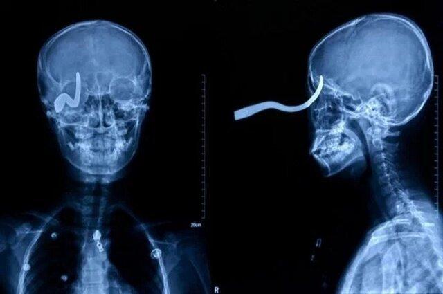 Мир глазами рентгенолога