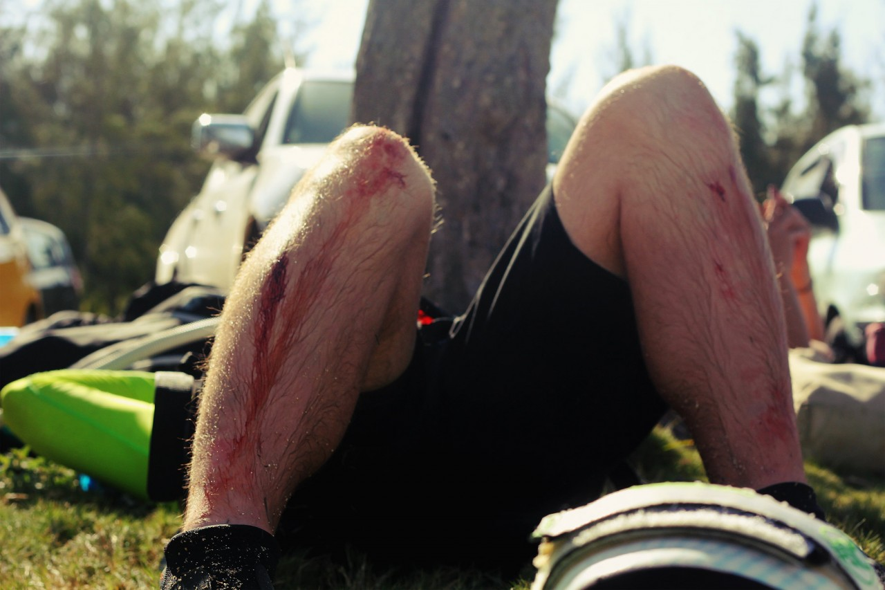 Разрезанные ноги фото 5 фотография