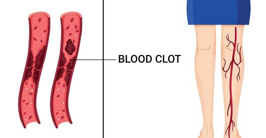 7 ранних предупреждающих симптомов тромба, которые вы не должны игнорировать
