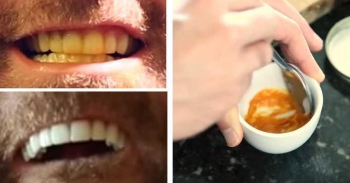 Трюк для отбеливания зубов