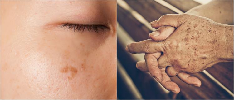 Средство, которое способно отбелить кожу.