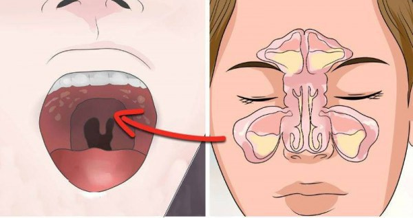 Если вас мучает синусовая головная боль прежде всего проверьте эту скрытую связь