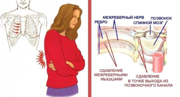Боль при невралгии