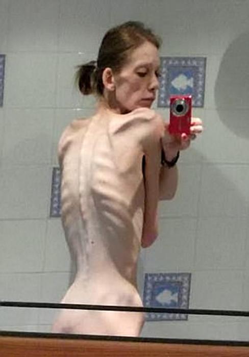 От анорексички до бодибилдера: она весила всего 25 кг, а стала спортивной чемпионкой