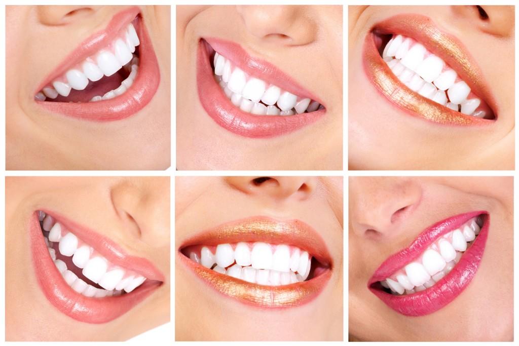 Отбелить зубы за один день.