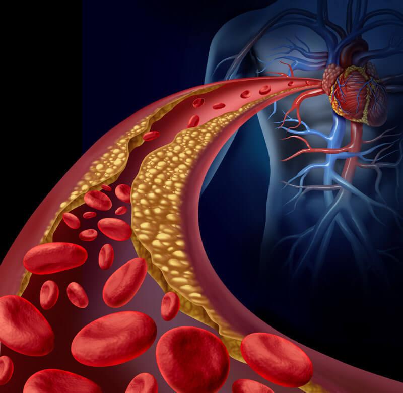 5 продуктов, которые чистят артерии