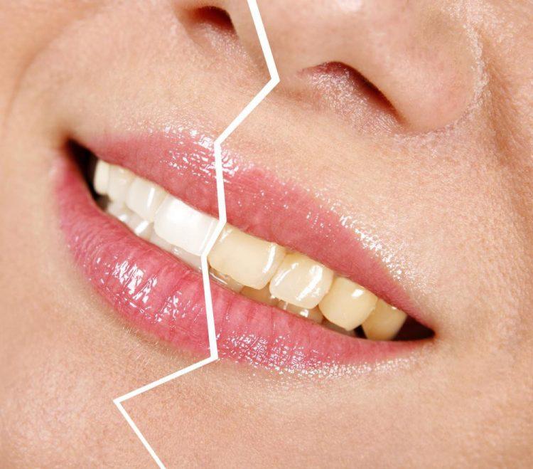 Секрет белоснежных зубов: отдельная зубная щетка и самое дешевое средство из аптечки