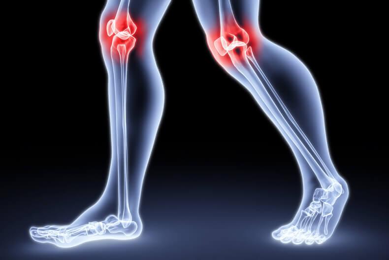 Как избавиться от боли в коленях и локтях
