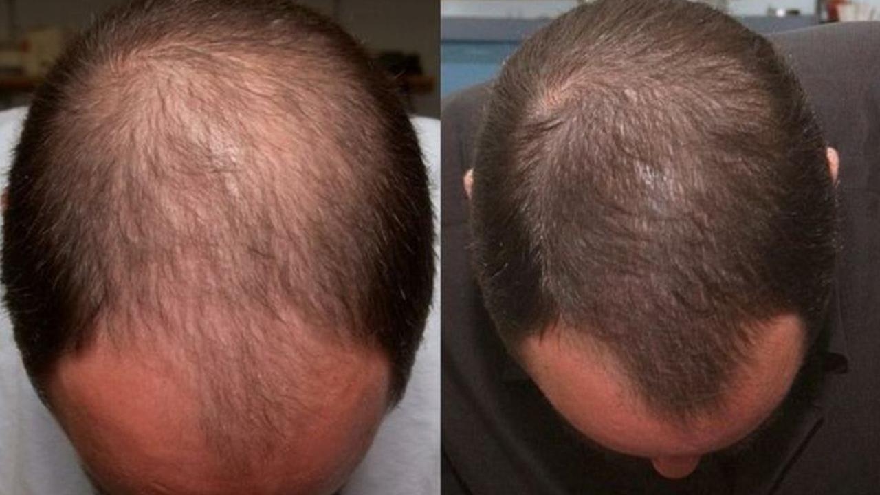 Реально действующая маска от облысения и выпадения волос с Димексидом