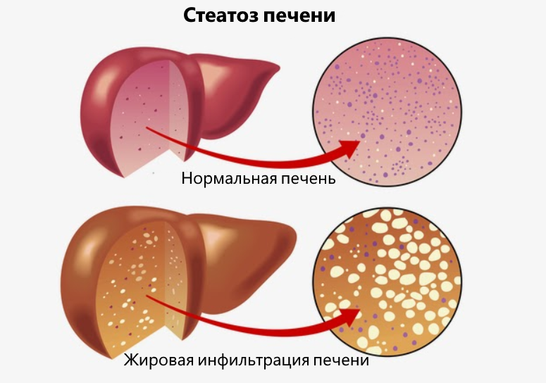 Диффузный стеатогепатоз печени