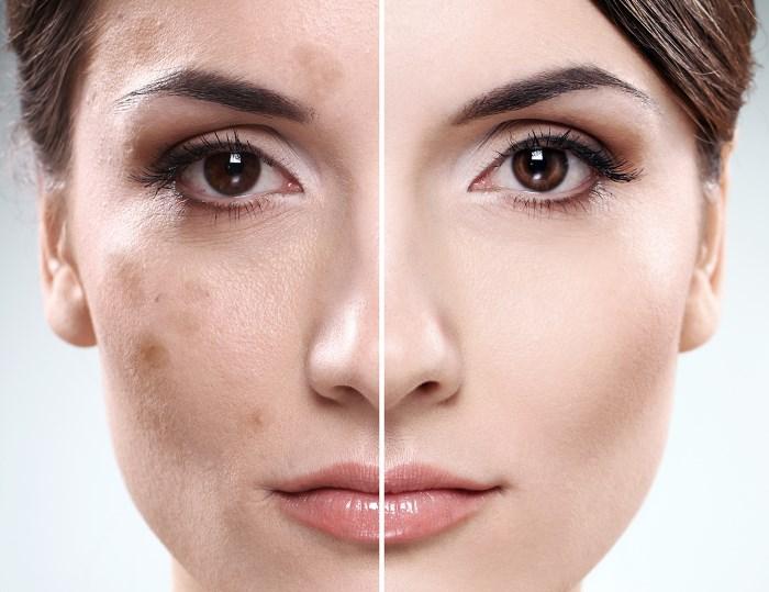 Как устранить темные пятна на лице с помощью 5 природных средств