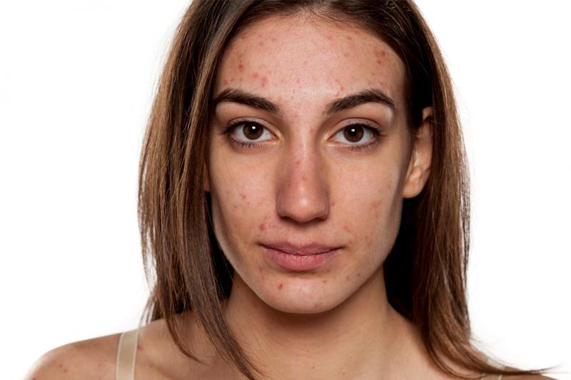 Рецепт лучшего домашнего средства для лечения проблемной кожи
