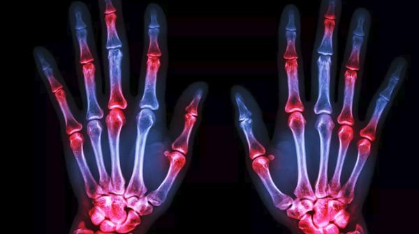 Как и чем лечить артрит на пальцах рук