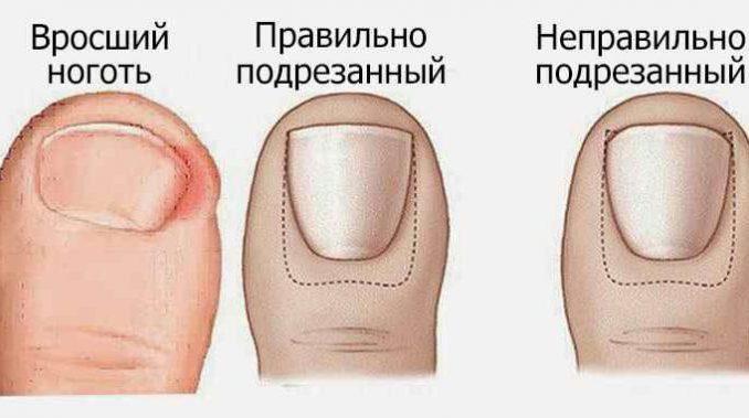 Натуральное домашнее средство для лечения вросших ногтей на ногах.Стоит попробовать!
