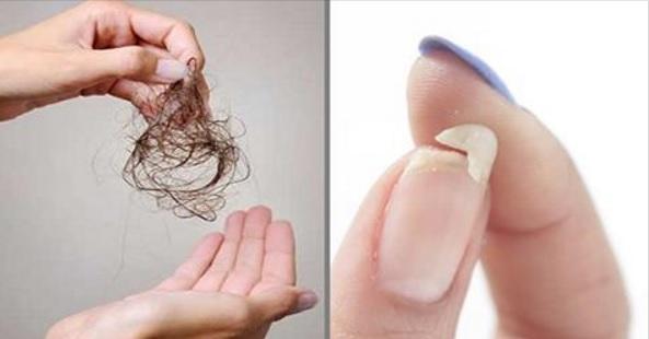Что нужно знать, если Вы страдаете от выпадения волос, ломкости ногтей, или плохо спите