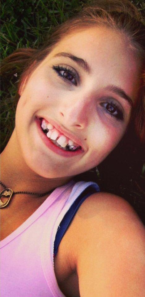 Что бы вы сделали в данной ситуации? Зубы или айфон?