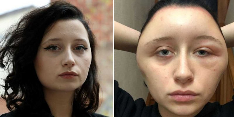 """Аллергия на краску для волос превратила студентку в """"лампочку"""""""