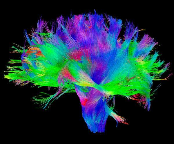 Учёные выявили принципиальные различия в устройстве женского и мужского мозга