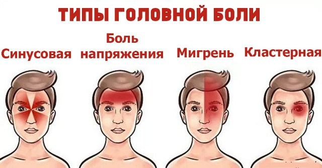 Голова трещит или ноет? Оказывается, есть 4 формы головной боли!