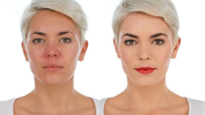 Хитрости макияжа для проблемной кожи