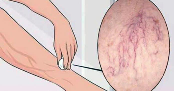 Избавиться от варикозной сетки, предотвратить варикозные узлы помогут эти 5 средств