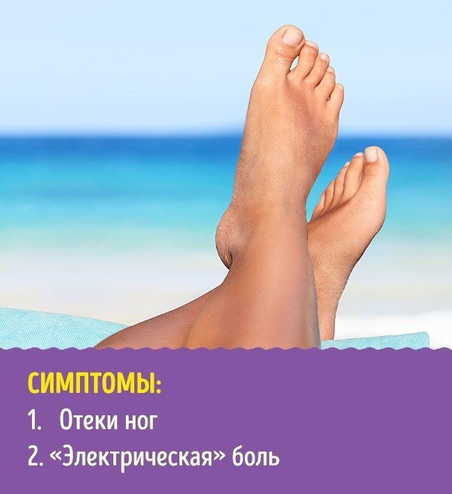 Что расскажут о здоровье ваши ноги