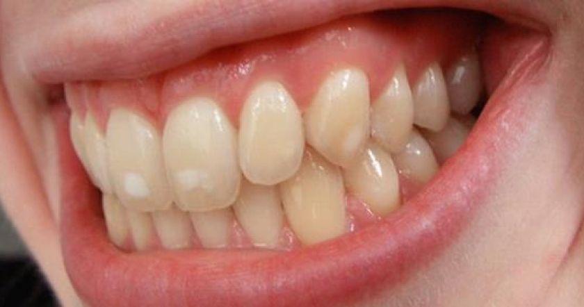 Картинки по запроÑу Одиннадцать Ñоветов по лечению белых Ð¿Ñтен на зубах